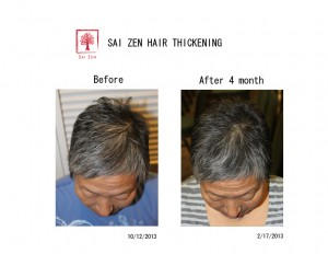 sai zen hair thickening before after 2